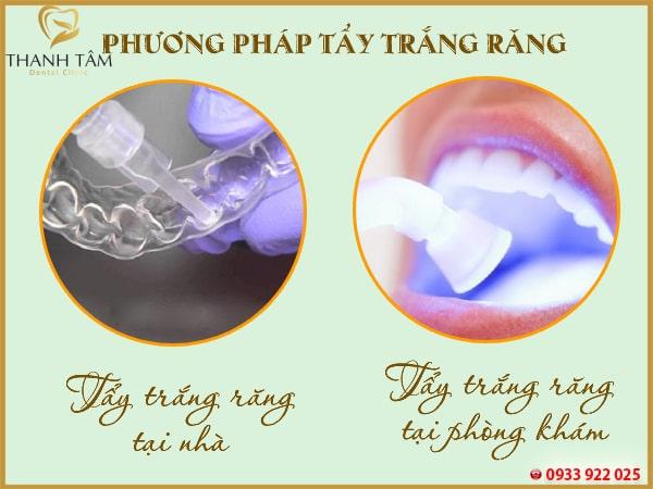 2 phương pháp tẩy trắng răng phổ biến