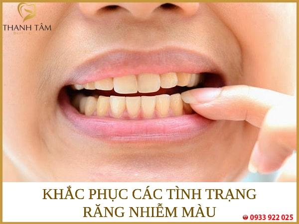 Răng nhiễm màu