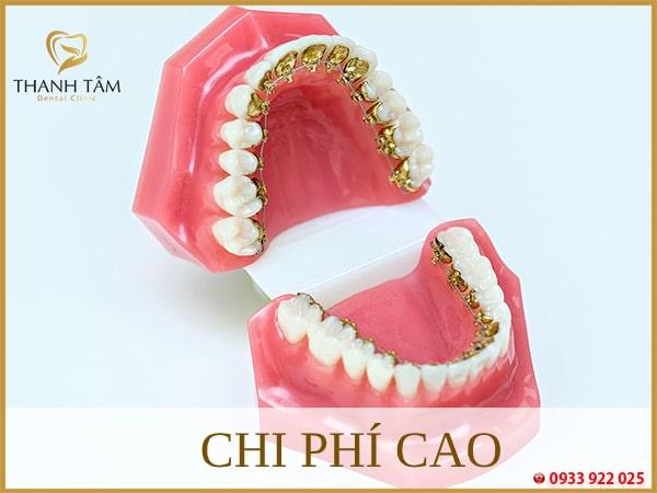 Phương pháp chỉnh nha niềng răng này có chi phí cao