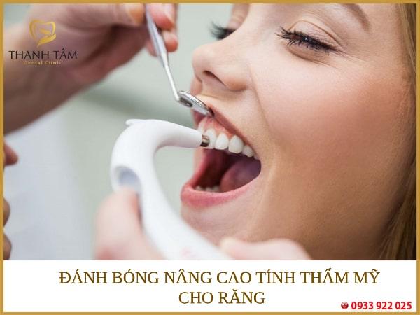 Nâng cao tính thẩm mỹ cho răng