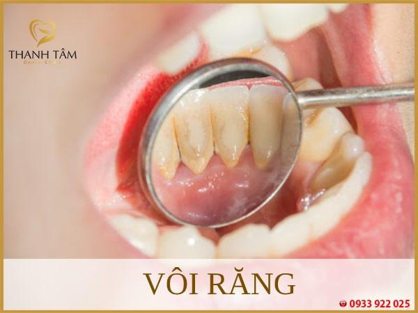vôi răng gây ảnh hưởng xấu đến sức khỏe răng miệng