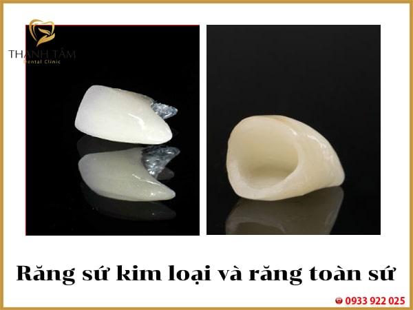 So sánh răng sứ kim loại và răng toàn sứ