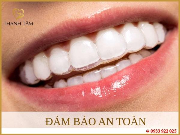 niềng răng Invisalign đảm bảo an toàn
