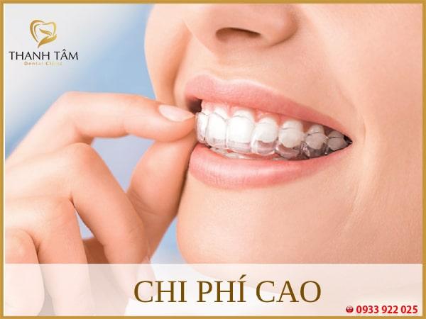niềng răng Invisalign chi phí cao