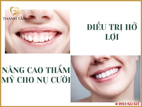 cắt nướu răng phù hợp với những khách hàng có nhu cầu thẩm mỹ nụ cười