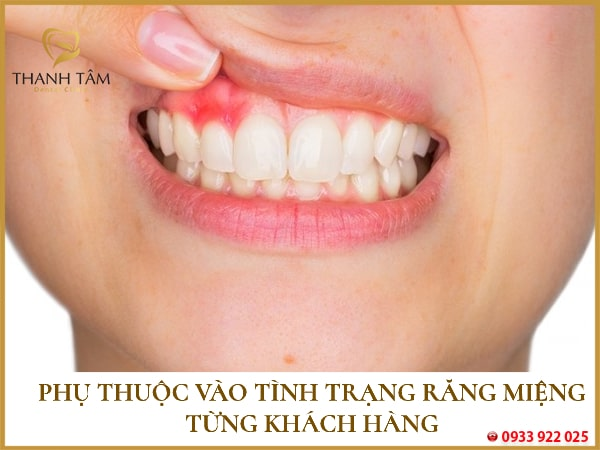 Phụ thuộc vào tình trạng răng miệng