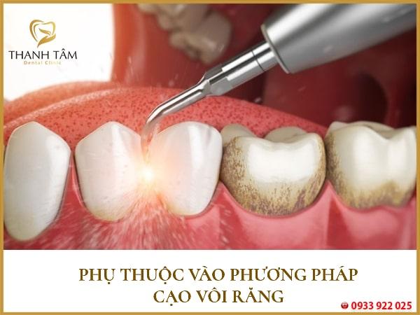 phụ thuộc vào phương pháp cạo vôi răng