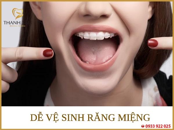 iềng răng mắc cài pha lê và mắc cài sứ Tiện lợi cho việc vệ sinh răng miệng