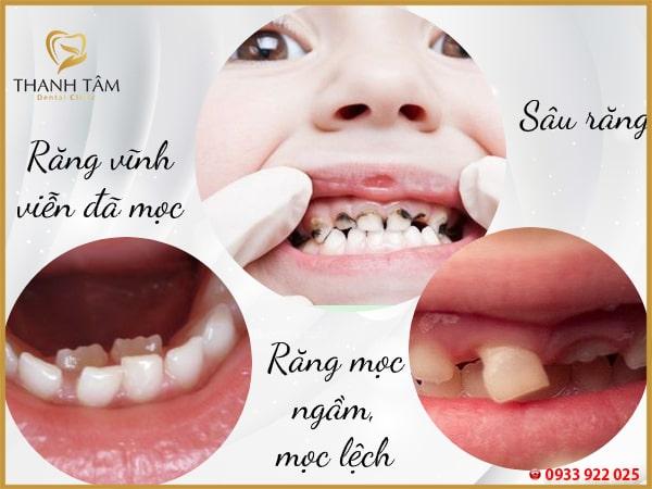 các trường hợp nên nhổ răng sữa
