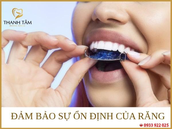 Đảm bảo sự ổn định của răng