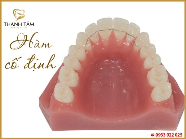 niềng răng xong có phải đeo hàm duy trì không
