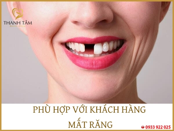 phù hợp với khách hàng mất răng vĩnh viễn