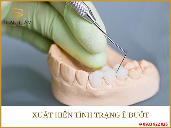 Có thể ảnh hưởng đến sức khỏe răng miệng về sau