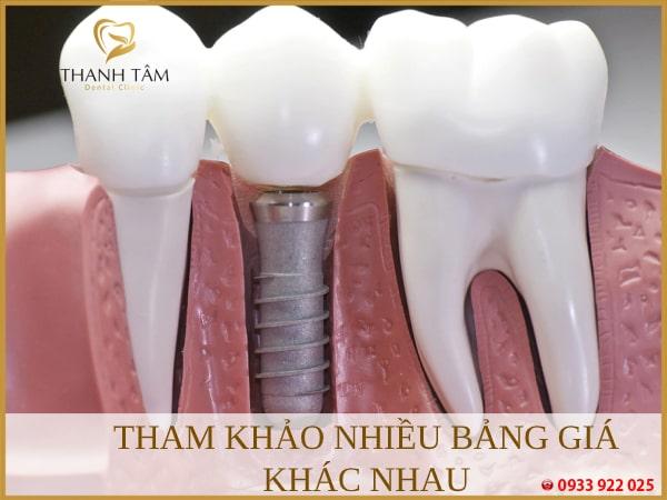 làm răng implant giá