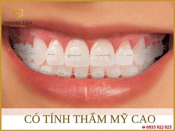 niềng răng mắc cài sứ tự buộc Mang lại tính thẩm mỹ cao