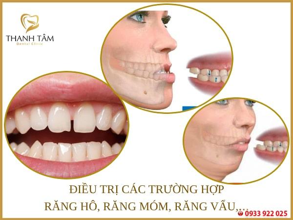 Khắc phục hiệu quả các khuyết điểm răng