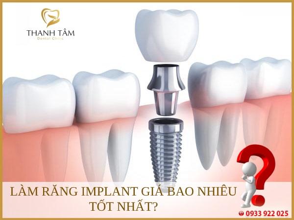 Giá răng Implant có nhiều mức khác nhau