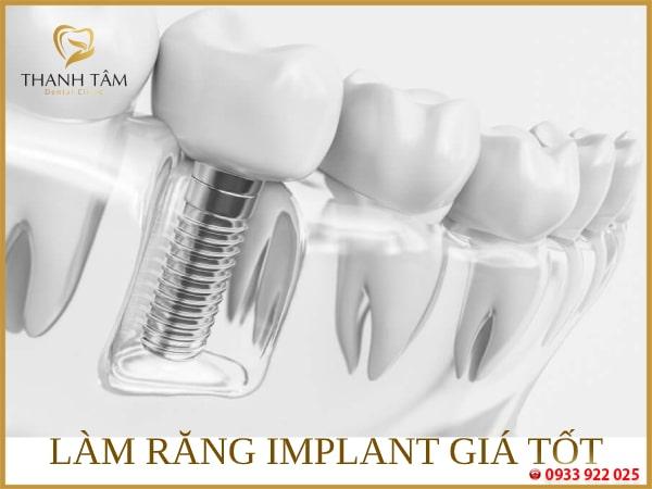Chi phí cấy ghép Implant phải chăng