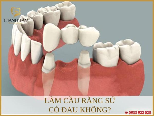Bắc cầu răng sứ có đau không tùy vào từng trường hợp