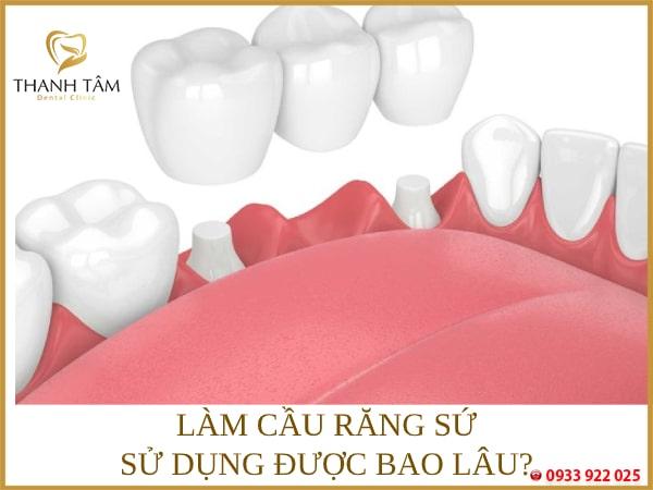Tuổi thọ của cầu răng phụ thuộc nhiều yếu tố