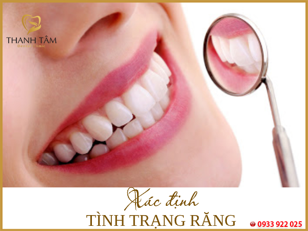 HIểu rõ tình trạng răng miệng