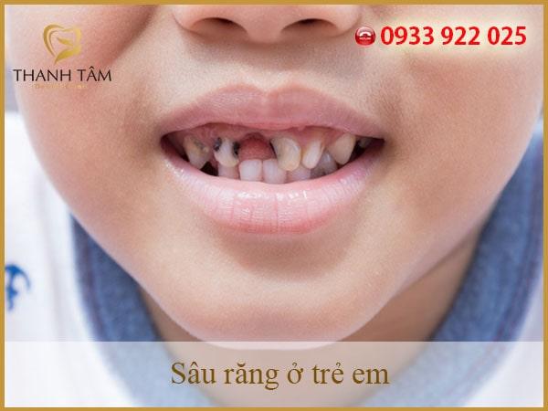 răng trẻ bị sâu