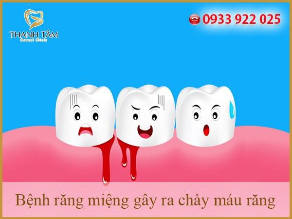 Nguyên nhân chảy máu chân răng
