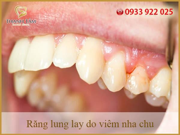 Nha chu bao bọc quanh chân răng làm cho răng có thể đứng vững, nhai mạnh