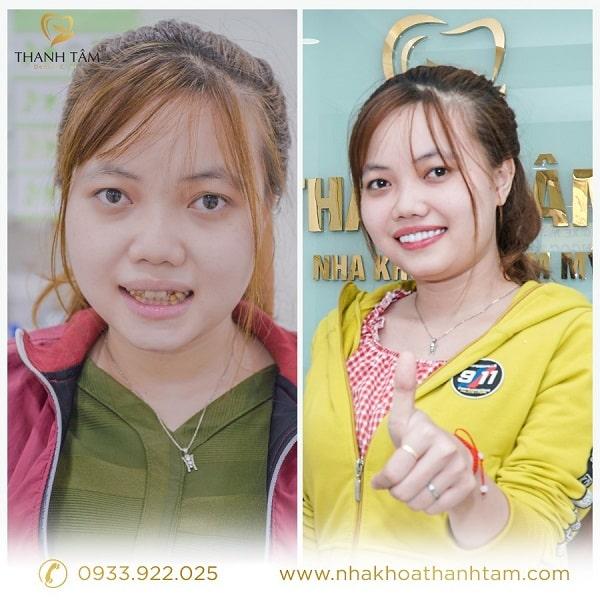 hình ảnh khách hàng bọc răng sứ DDBIO tại nha khoa Thanh Tâm (2)-min