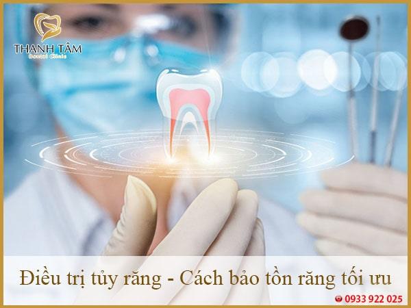 Điều trị tủy răng - Cách bảo tồn răng tối ưu