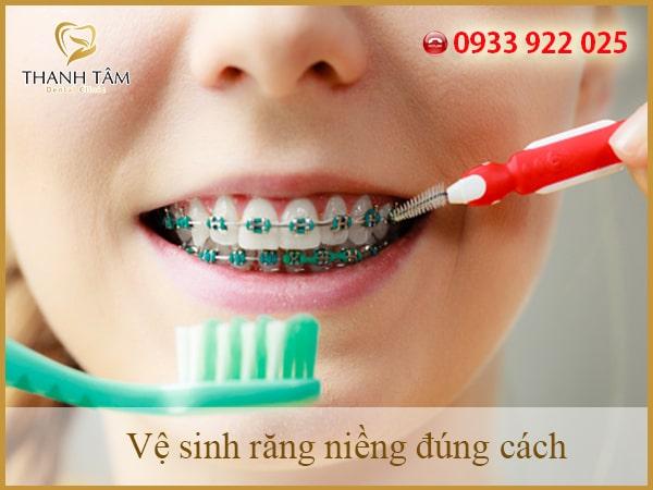 Bạn cần biết cách làm vệ sinh răng miệng sau khi niềng răng