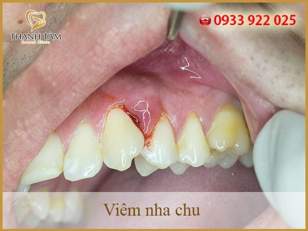 Nha chu là một bộ phận dễ bị tổn thương trong khoang miệng