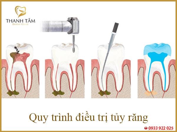 quy trình điều trị tủy răng-min