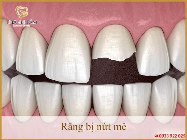 răng bị nứt mẻ