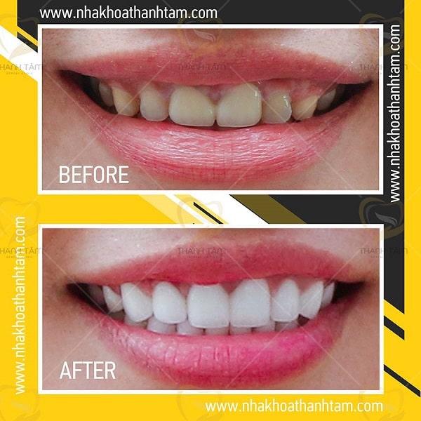 bọc răng sứ khắc phục răng ố vàng