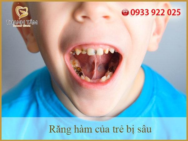 Sâu răng hàm