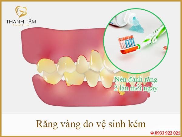 răng vàng do vệ sinh răng miệng kém-min