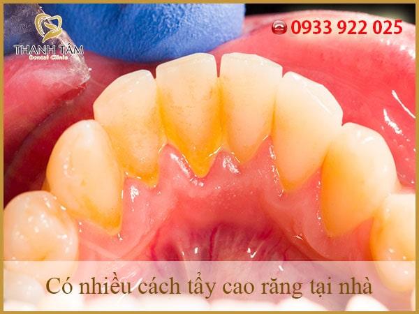 Lấy cao răng tại nhà