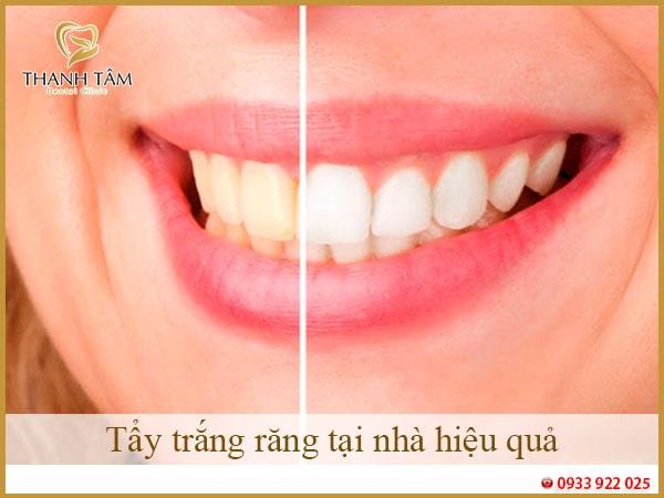 tẩy trắng răng tại nhà hiệu quả-min