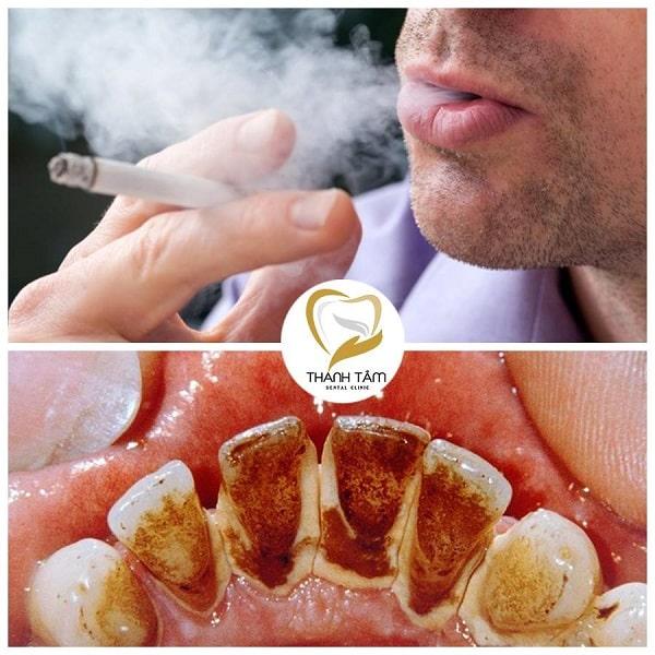 Thuốc lá gây ra tình trạng răng nhiễm màu