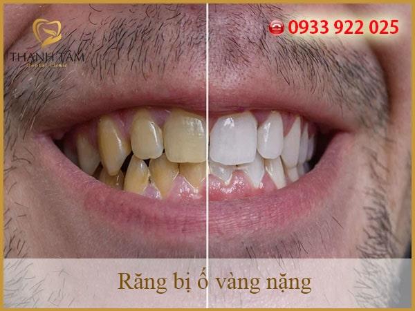 tẩy răng ố vàng