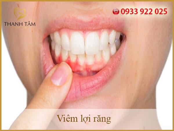 viêm lợi răng