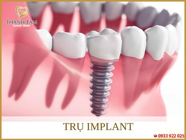 Trụ Implant bằng Titanium thay thế chân răng và thân răng sứ bên trên