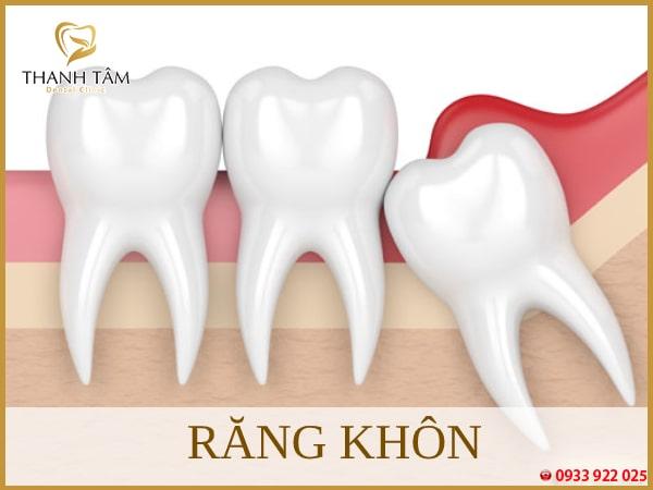 Răng khôn - Răng mọc cuối cùng trên mỗi hàm
