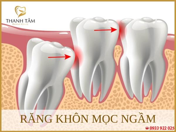 Nên nhỏ bỏ khi răng mọc ngầm, ảnh hưởng đến các răng khác