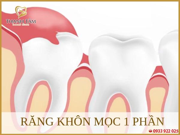 Nhổ răng khôn có nguy hiểm không tùy thuộc vào từng trường hợp