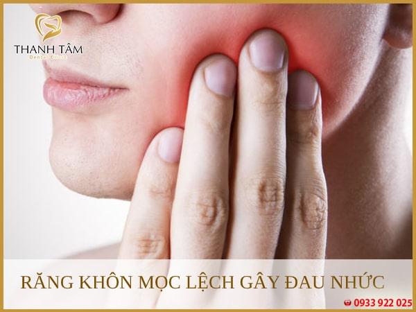 Răng mọc lệch gây đau nhức cần được nhổ bỏ