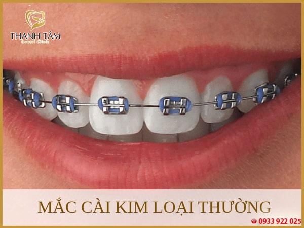 Mắc cài kim loại thường khác phục được những khuyết điểm răng khó