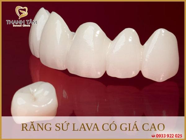 Chi phí phục hình răng sứ Lava Plus cao