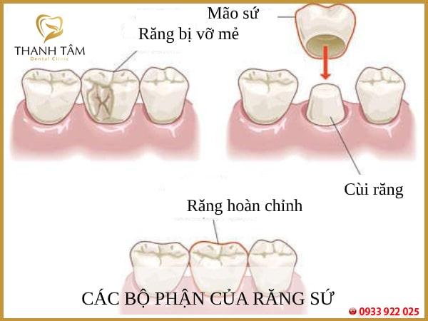 Gắn cùi giả toàn sứ chính là giải pháp khắc phục khuyết điểm răng nhanh chóng